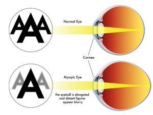15934074 - myopia