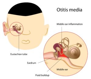 Middle ear infections affect the middle cavity (behind the eardrum).