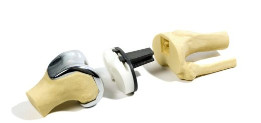 10977771 - plastic stydy model of a knee replacement